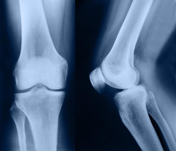 How would you know if a knee cap was fractured?