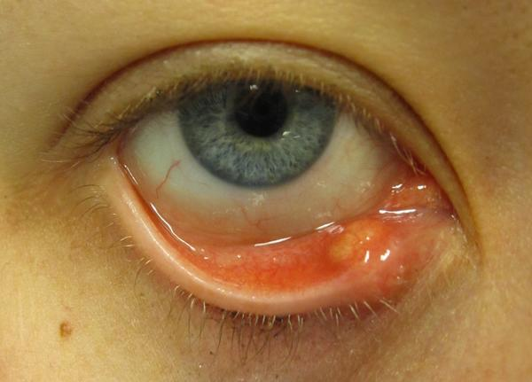 I have what I think is a stye on left lower lid, there is a bump on the outside corner but eye itchy and pull down lid it's real red and some spots?