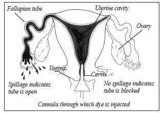 "What does it mean ""the left fallopian tube is patent. However, it demonstrates contained spillage of contrast""?"