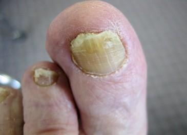 My toe nail has stopped growing from 3 months and it's color has changed to yellowish from above and the belw is turning to whitish What should I do?