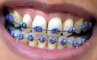 I've heard that lingual braces cost more than the front-of-the-teeth sort. Is this true? Do they function just the same? I'm looking into closing spaces between my front four teeth without going with standard braces and so I am am trying to choose between