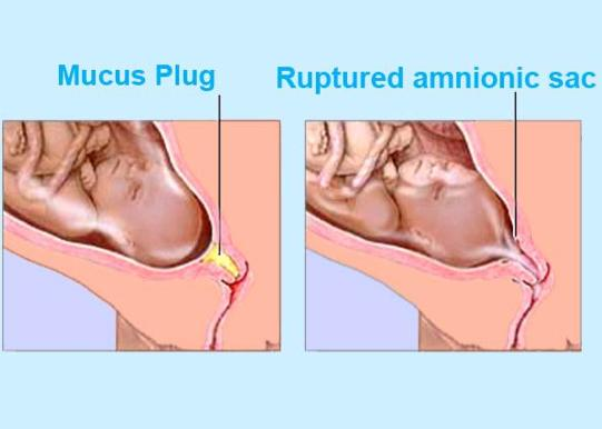 This is my first pregnancy and the mucus blog is coming down today is this sing for starting the labor? There is no pain