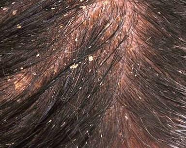 I've always had dandruff, but lately it's been getting worse and what used to help no longer is. What could cause it to get worse so quickly?