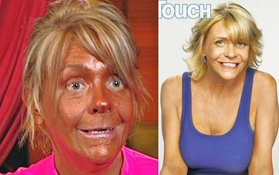 Are tans healthy?