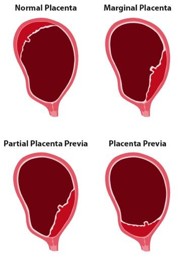 What are the tests for placenta previa?