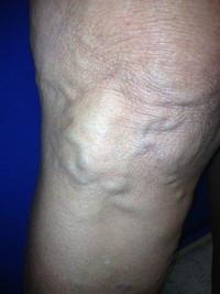 What are some problems with varicose veins?