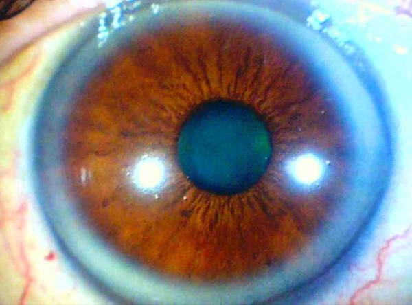 Blue Ring Eye Cholesterol
