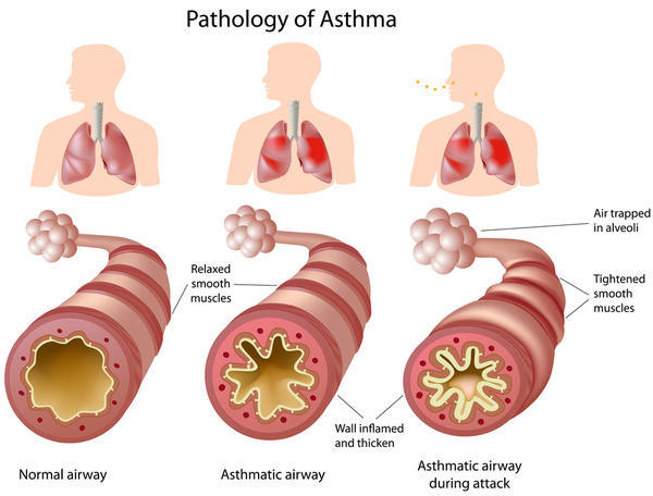Does asthma symptomps always include cough?