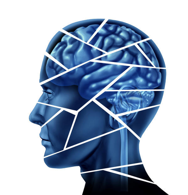 What is the definition of degenerative dementia?