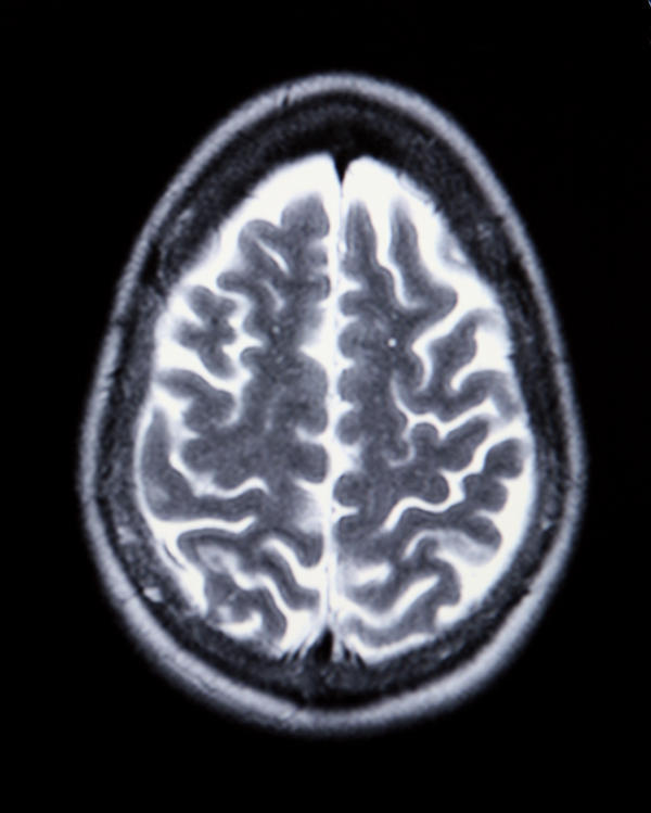 What are little dots appearing on a brain MRI that are not in the matter itself, but run down the middle areas? Radiology said negative for MS.