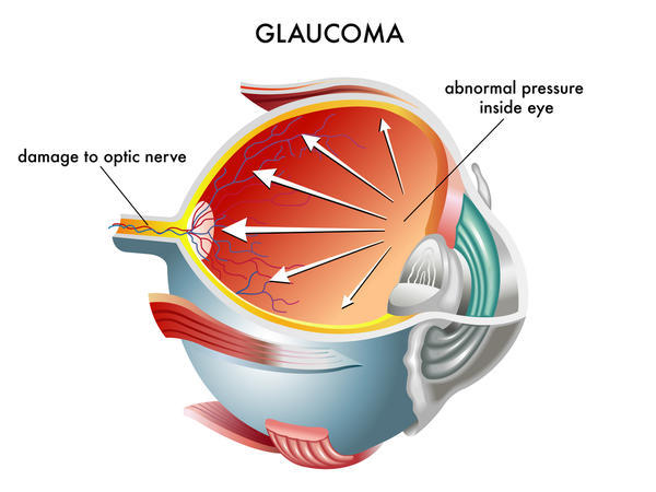 What else causes glaucoma besides the intraocular pressure?
