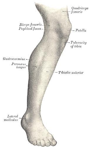What causes one leg swelling?