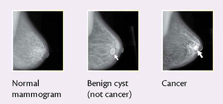 Left breast tender large breasts and blue veins more in left aged 52 periods stopped 18 months can feel no lumps?