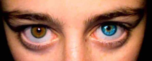 Is it normal for my eye colour to change from brown to blue literally overnight? Never had eye problems and my vision is fine, 32yo male