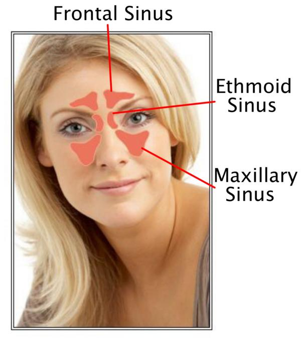 Does a sinus rinse out your sinuses in your forehead?