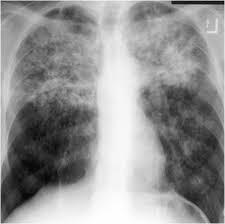 What does bilateral upper lobe confluent hazed tuberculosis infiltrates mean?