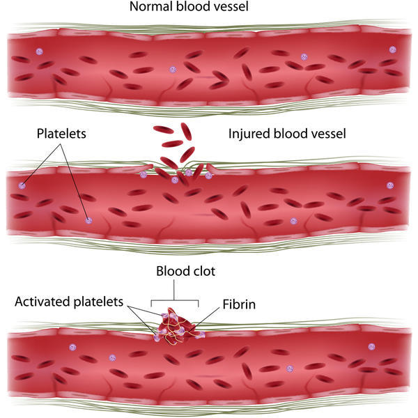 How easy is it to get a bloodclot? How can you prevent and avoid? Also can standing and sitting cause them?