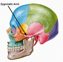 Have cheekbone implants from cadaver rib cartilage in an angular shape, was exfoliating my cheeks with a muslin cloth in circular motions hard. Could this have exfoliated the implant beneath the skin like buffered them and made the shapes less sharp?