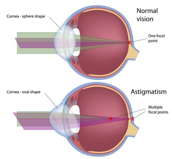 Astigmatism in right eye.  Could this ever somehow improve on its own (even slightly), and if not, why?