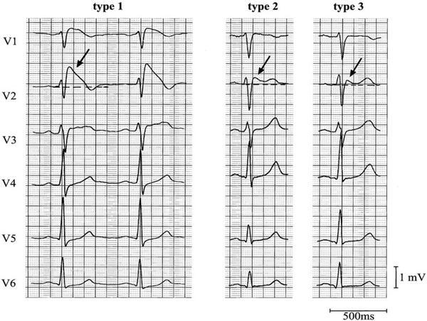 What is the difference between a spontaneous Brugada pattern and a sodium-channel blocker induced Brugada pattern? Does it have the same chance of VF?