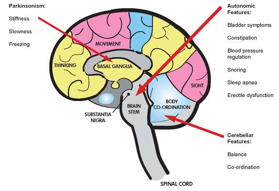 What are the signs of multiple system atrophy?