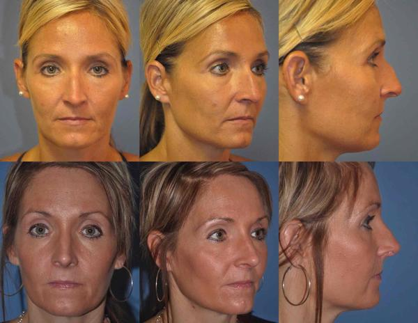 How long does tip rhinoplasty take? Is it done under general anesthesia or sedation? What is recovery/result time compared to full rhinoplasty?