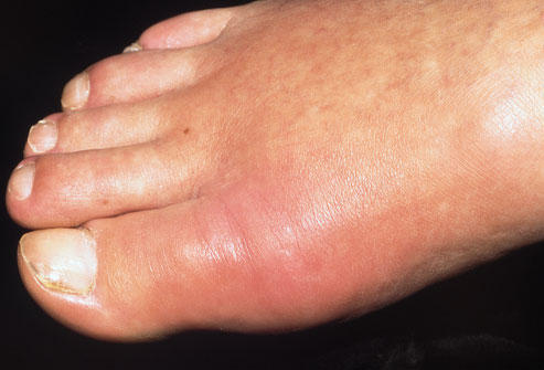 What is moderate pain and swelling in the joint of my big toe where it joins my foot. I'm 43 and very physically active.?