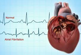 Can Bisoprolol fumerate help to keep your heart in rhythm even though it is to keep my heart down. I am currently in rhythm with no medication.