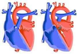 What are the symptoms associated with valvular aortic stenosis?