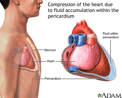 What is the treatment for blood around the heart?