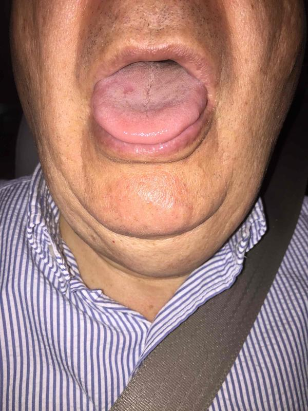 If I am concerned about a possible tongue infection (candida?), do I see my regular internist, or see some other type of doctor? Thanks.