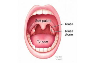 I have had a white nodule seems to be protruding out of my tonsil. It didn't seem to hurt to swallow but did hurt If I touched the side of my throat but now feels as if there is something in my throat. Should I be worried?