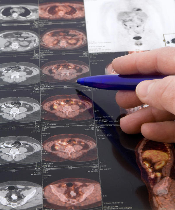 Are pet scans accurate or are other scans better?