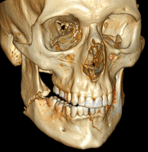 What type of doctor should I see for facial fractures?