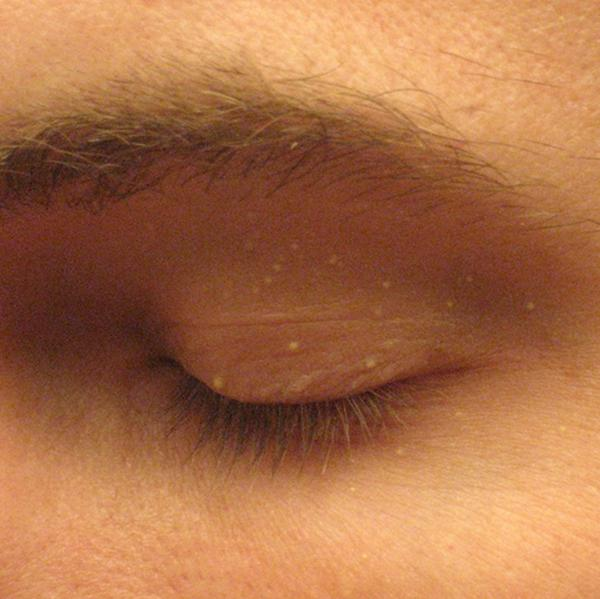 I have a small white bump on the eyelid almost looks like a zit full of puss but its hard? How can I remove this or what could it be?
