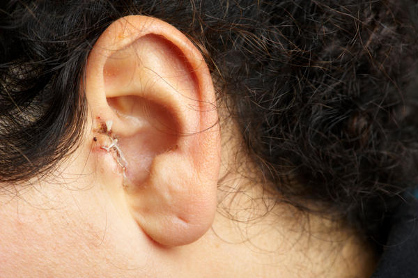 Small lump in front of my ear. Not so visible and hurts occasionally. Its near the nerve associated with the eye I think. What is this? I'm very scare