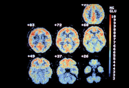 Can a PET scan cause an increase in?