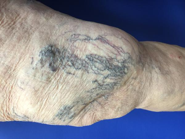 Are spider veins signs of a health problem?