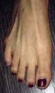 What is a Tailor's bunion / bunionette?