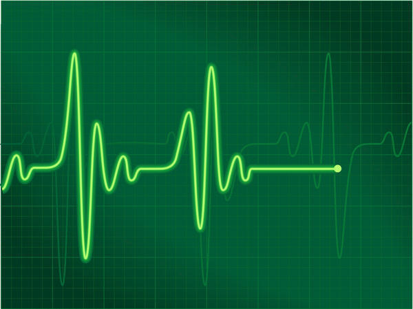What is a sinus tachycardia w/ artifact and what is sinus tachycardia with PVC?