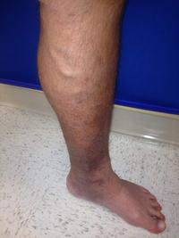 What is venous stasis?
