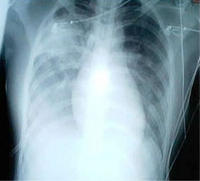 What causes atypical pneumonia to occur?