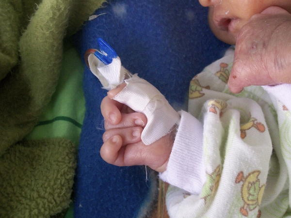 How are scientists looking into preventing Trisomy 18 from occurring?