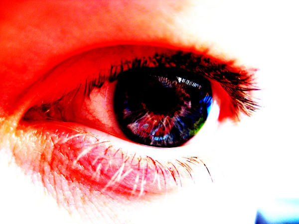 Can red, bloodshot eyes cause blurred vision?