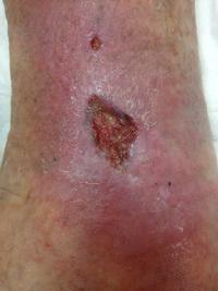 Help please? What is the best dressing choice for a high exuding venous ulcer?