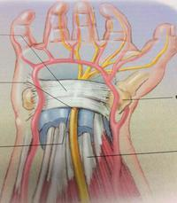 Is carpal tunnel cureable if I had it my whole life? It's not severe but bad at times and had since I was like 10. Will it be like this forever?
