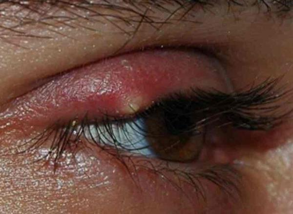 Have a stye when I do the hot compress I see a white head but it won't pop on its own. Then when I'm done with the compress the white head goes away?