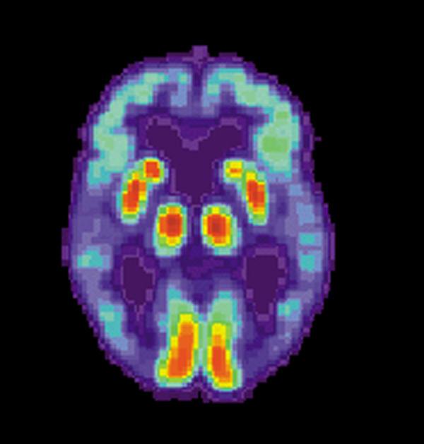 What are the psychiatric/mental symptoms of dementia?