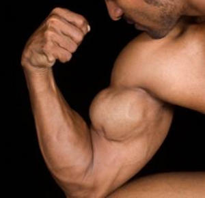 What to do if I have a condition called radioulnar synostosis and I want to build up my biceps.?