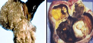 Would a pelvic ultrasound show when a dermoid ovarian cyst has ruptured? What would it show?